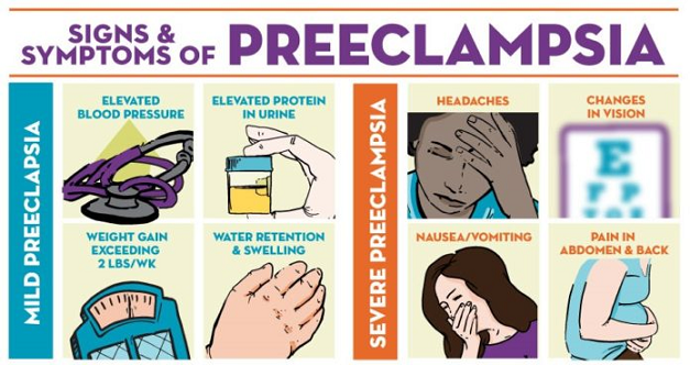 preeclampsia - one of the risks when pregnant with twins