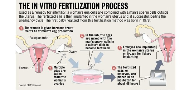 in vitro fertilization